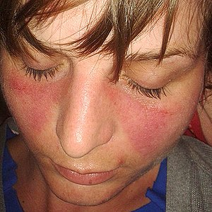 Systemic lupus erythematosus wikipedia young woman with the typical butterfly rash found in lupus sciox Image collections