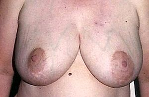 Mature female breasts during nursing phase.jpg