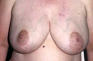 Breast engorgement Medical condition