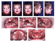 Patient with Apert syndrome.jpg