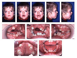 Description de l'image Patient with Apert syndrome.jpg.