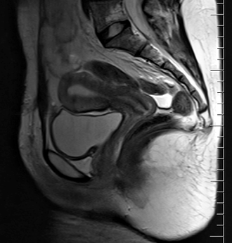 Female reproductive system - Sagittal MRI showing the location of the vagina, cervix and uterus