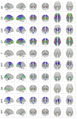 Population-averaged human tractography atlas - Projection Pathways.png