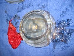high profile breast implants