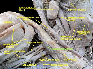 Subclavius muscle - Image: Slide 10d