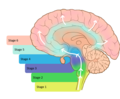 The prion hypothesis in Parkinson's disease, Braak to the future.png