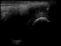 Ultrasound Scan ND 084648 0850340 cr.png