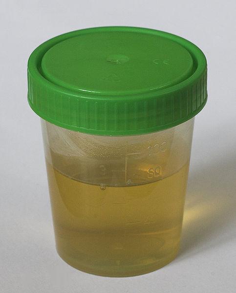 Weiße stücke im urin