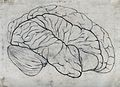 Brain with defect in the right frontal region. Pencil drawin Wellcome V0030046.jpg