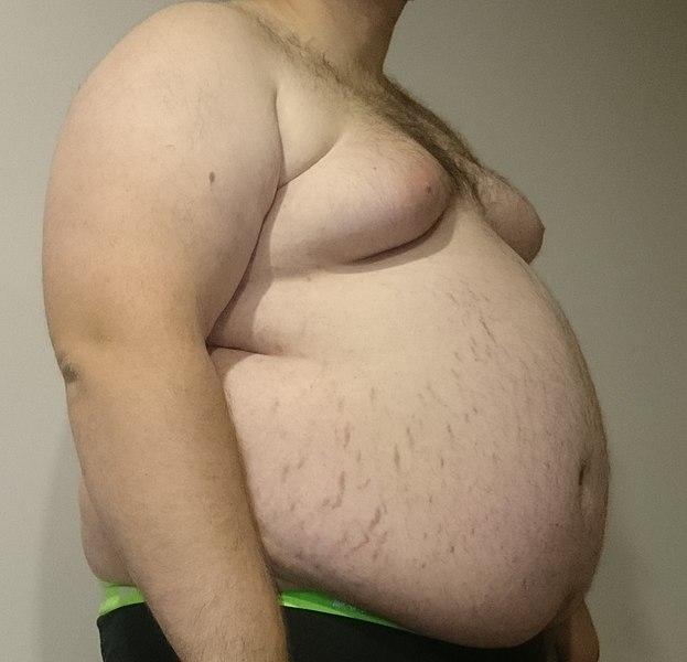 File:Central Obesity 011.jpg