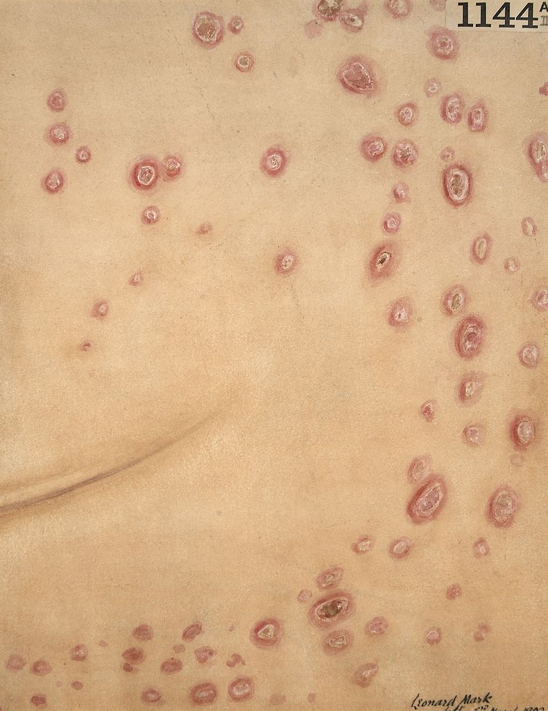 disease report on syphilis Reported us cases of three stds reaches record two according to the 2016 sexually transmitted disease surveillance report the report showed that syphilis.