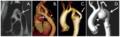 Coarctation of the aorta.tiff