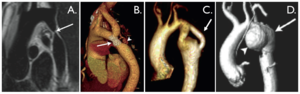Coarctation of the aorta.tiff