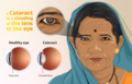 Depiction of a person with Cataract.png