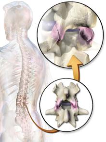 chronische lage rugpijn behandeling