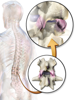 Facet Joints pushing together can cause lower back pain when lying down