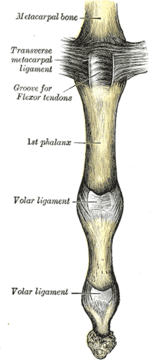 Interphalangeal joints of the hand - Metacarpophalangeal joint and joints of digit. Palmar aspect. Palmar ligament labelled as volar ligament.
