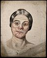 Head of a woman with a severe disease affecting her face. Wa Wellcome V0009886.jpg