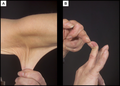 Hyperelastic skin & hypermobile finger in a case of Ehlers-Danlos syndrome.png