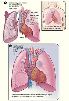 Lung transplant.jpg