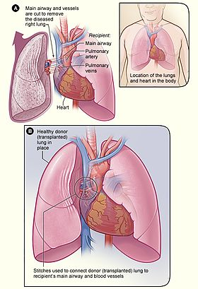 Lung transplantation wikipedia lung transplantg ccuart
