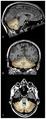 MRI image of cerebellum.png