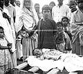 Patients at Satbarwa Hospital, Bihar, India, 1963 (16935205512).jpg