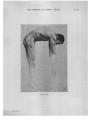 Richer - Anatomie artistique, 2 p. 120.png