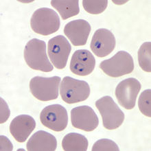 Rings of P. falciparum in a thin blood smear.jpg