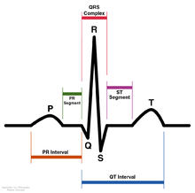 Schematic diagram of normal sinus rhythm for a human heart as seen on ECG (with English labels)
