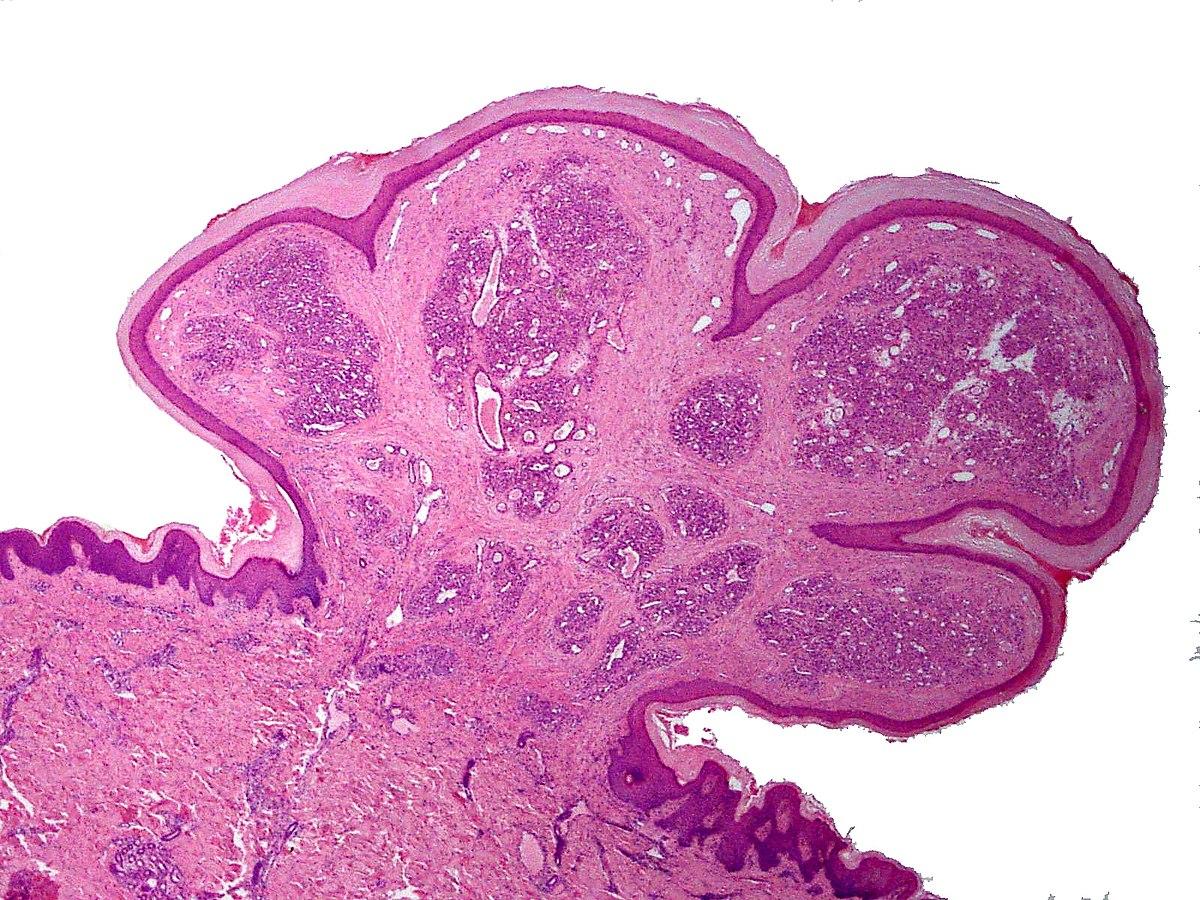 granulomatous papilloma)