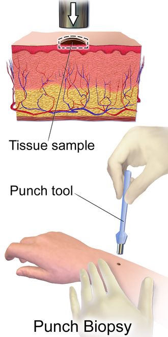Skin biopsy - Punch biopsy