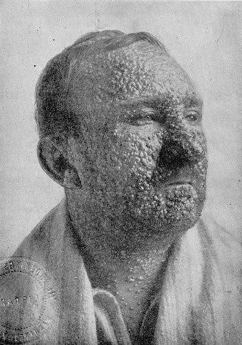 SmallpoxvictimIllinois1912