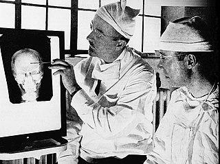 Lobotomy Neurosurgical operation