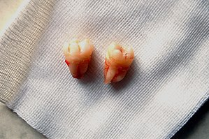 My upper and lower wisdom teeth, just extracted.