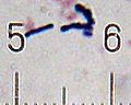 20101210 013757 BifidobacteriumAnimalis.jpg
