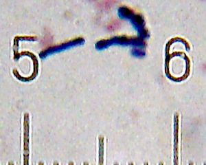 Bifidobacterium - Some of the Bifidobacterium animalis bacteria found in a sample of Activia yogurt:  The numbered ticks on the scale are 10 micrometres apart.