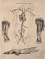 A human heart with surrounding arteries; two dissected legs Wellcome V0009642.jpg