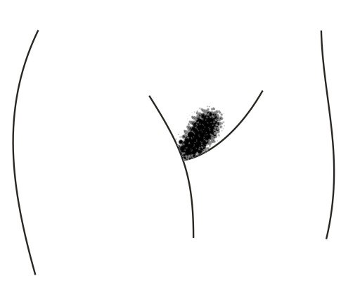 Bikini lines