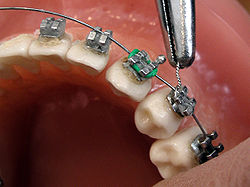 Orthodontics - Wikipedia