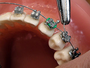 Orthodontics - Image: Brackets 06