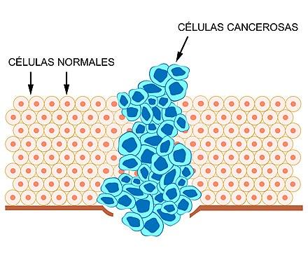 ¿Qué problemas conlleva la cirugía de próstata para carcinoma icd 10?