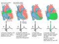 EKG-Herika sînyalên elektrîkê.png
