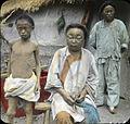 Emaciation, disease, and famine, Korea, (s.d.) (Taylor nobookM).jpg