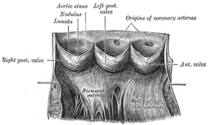 Aortic sinus - Aorta laid open to show the semilunar valves. (N.B. captions don't align with current terminology)