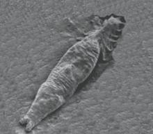 Quels symptômes arrivent les parasites dans la personne