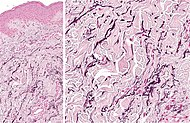 Histopathology of linear focal elastosis.jpg