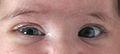 Horner syndrome.jpg
