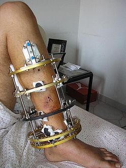 vad gör en ortoped