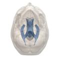 Interthalamic adhesion - 3rd ventricle - 06.png